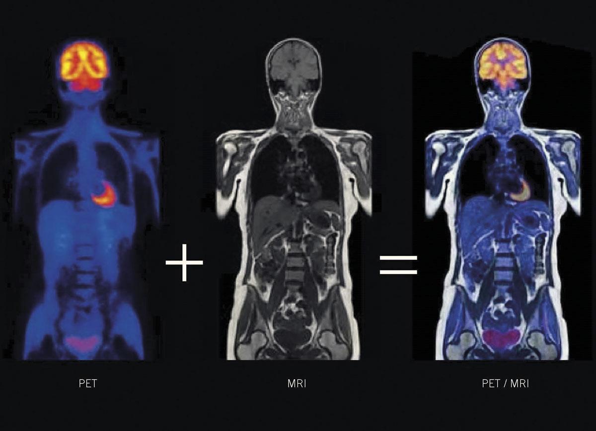 Understanding PET - Medical Forum