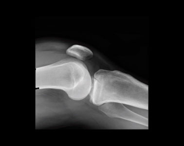 Figure 1: Horizontal beam lateral film with lipo-haemarthrosis
