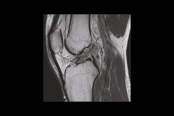 Figure 4, High grade ACL tear with 1 ligament bundle retracted and the other lax