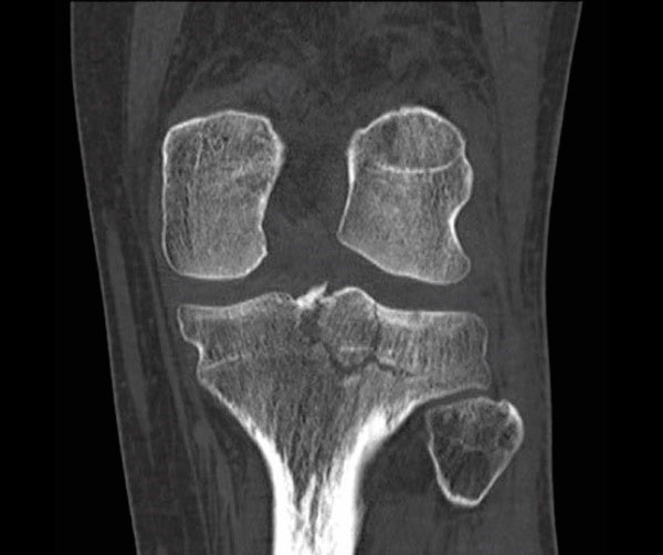 Figure 6 Intra articular comminuted fracture of the tibial plateau involving the articular surface and the tibial eminence