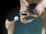 hip-op-3D-simulation