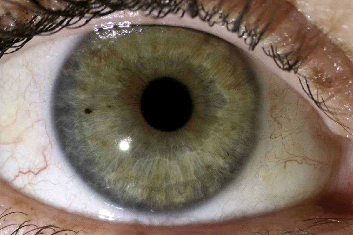 6 weeks after pterygium excision and conjunctival autograft.