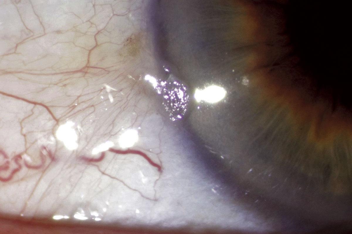 Leukoplakic lesion - biopsy demonstrated high grade dysplasia.