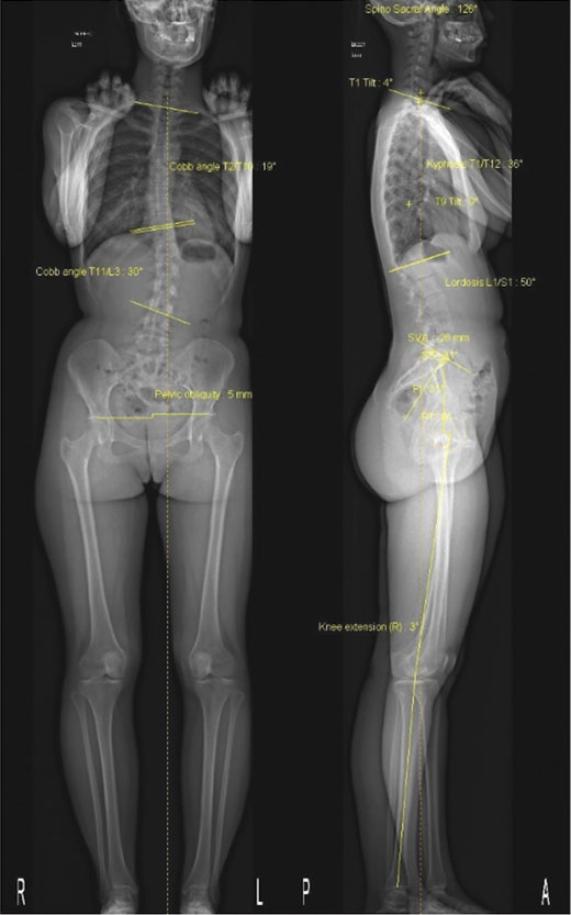 Simultaneous AP and Lateral Spine and lower limbs for evaluation of spinal balance and lower limb alignment in an adult female prior to hip surgery.