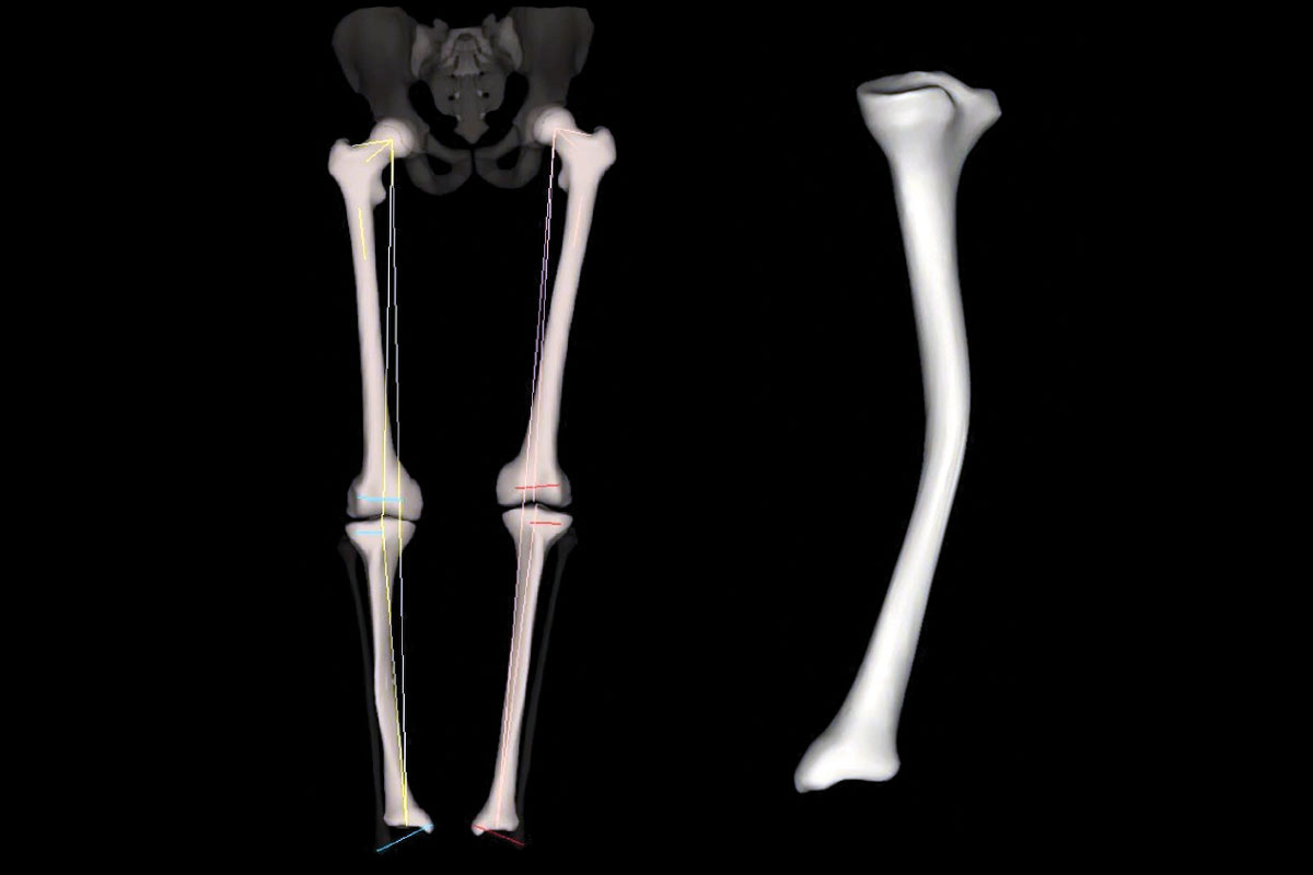 42 yo male with old tibial mal-union. Low dose 3D EOS demonstrates fracture morphology and accurate femoral and tibial lengths, as well as lower limb alignment for pre-operative planning.