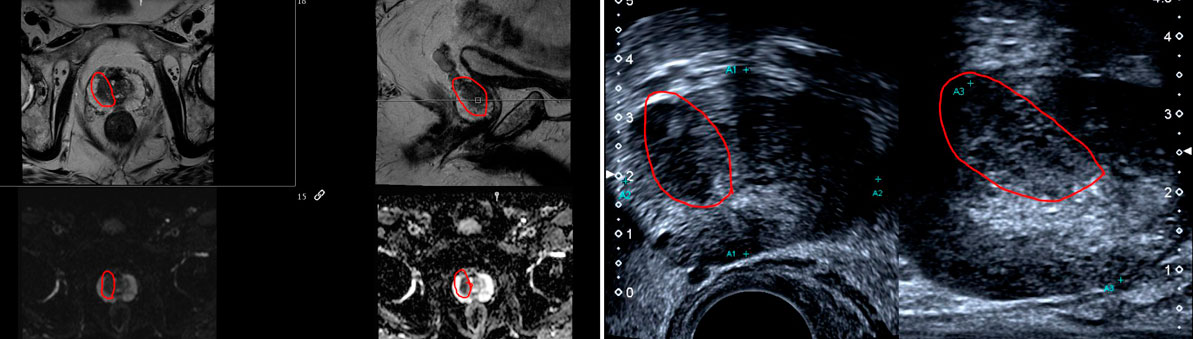Dual probe device showing the corresponding lesion at a similar position (magnified images of prostate), Intra-procedural ultrasound showing biopsy device extending towards the region of concern