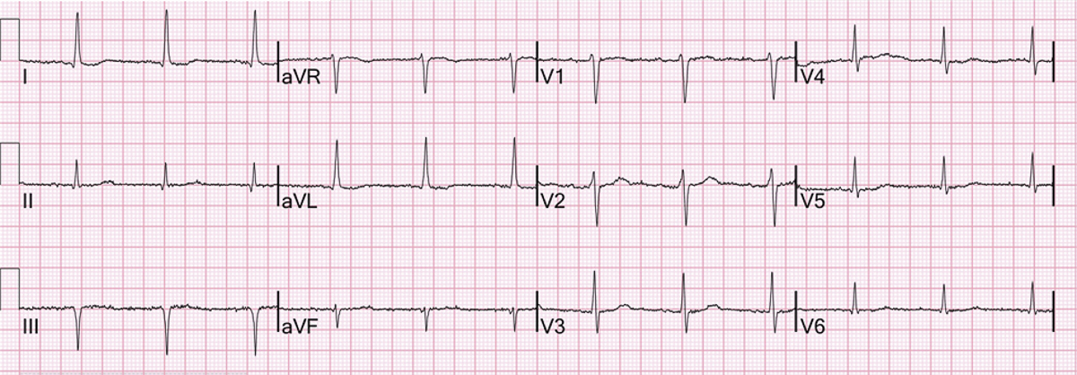 ECG machine diagnosis of atrial fibrillation when the rhythm is clearly regular and P waves evident before each QRS complex. The machine has also over-called inferior wall myocardial infarction.