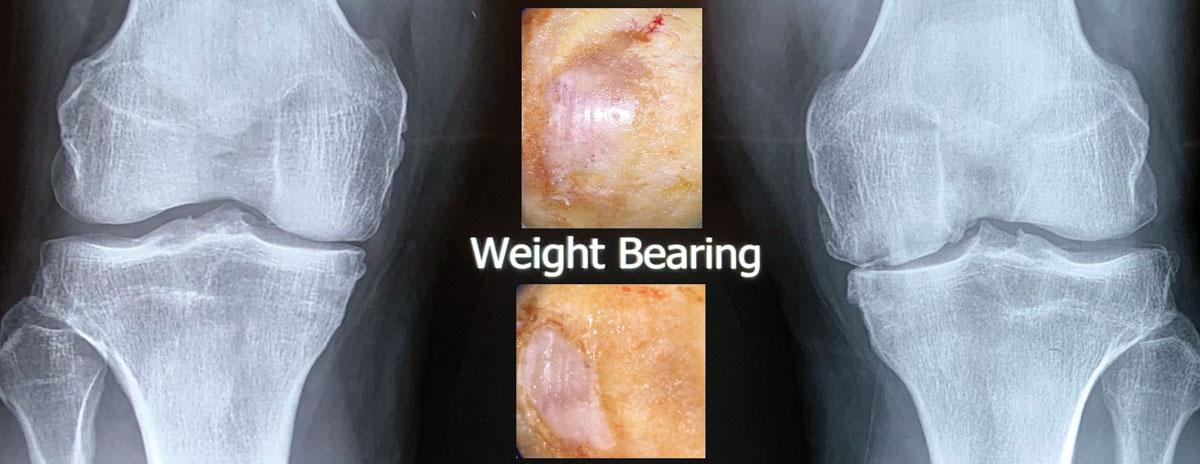 Weightbearing AP views show narrowing (insert: operative pics).